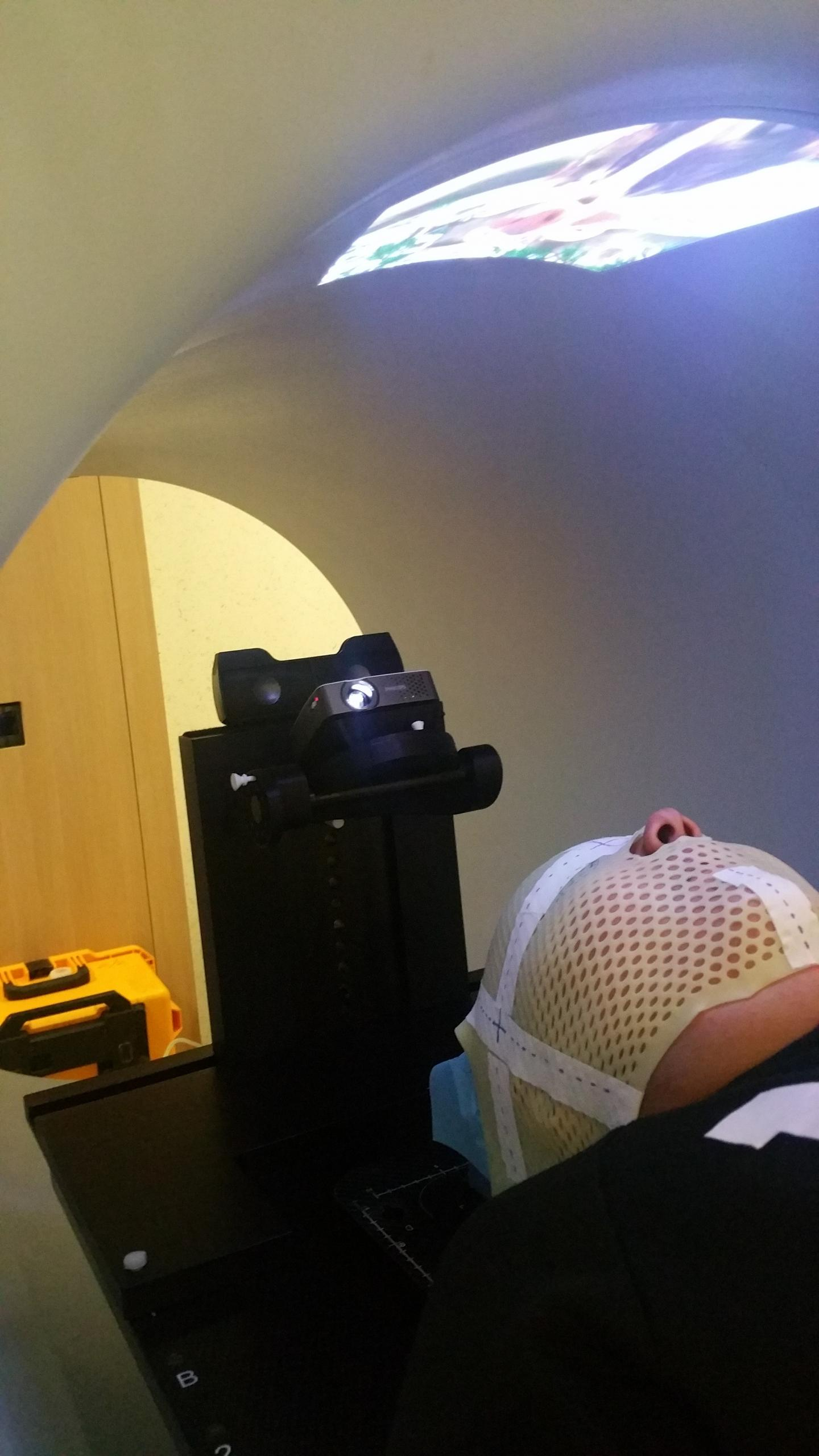 Child Watches a Movie While Undergoing Radiotherapy Treatment (1 of 3)