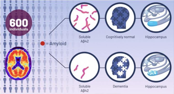 Alzheimer's study