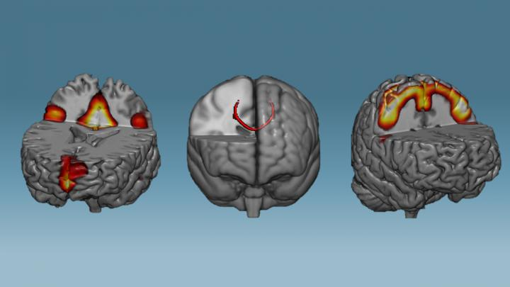 Neural Networks After Brain Training