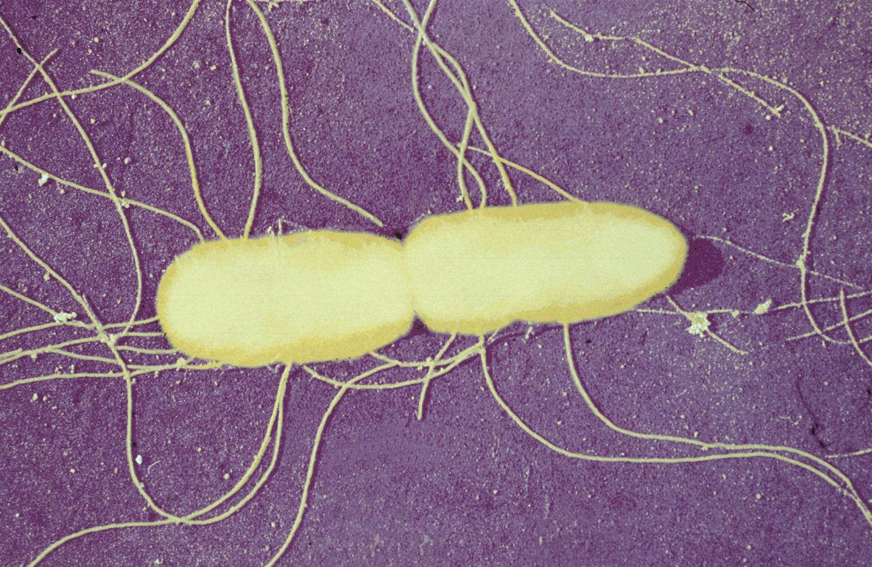 <i>Salmonella typhimurium</i>