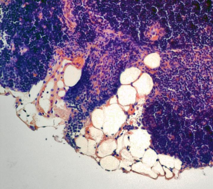 Aging Thymus with Fatty Degeneration
