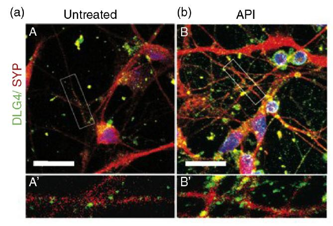 Untreated Neurons and Neurons Treated with Apigenin