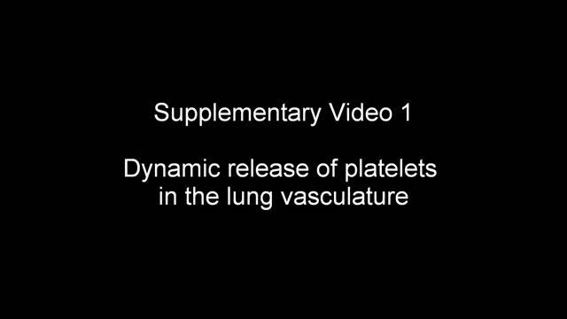Supplementary Video 1