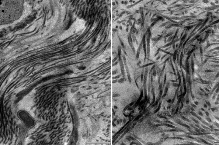 Healthy Scar with Collagen Type 5; Unhealthy Scar without Collagen Type 5