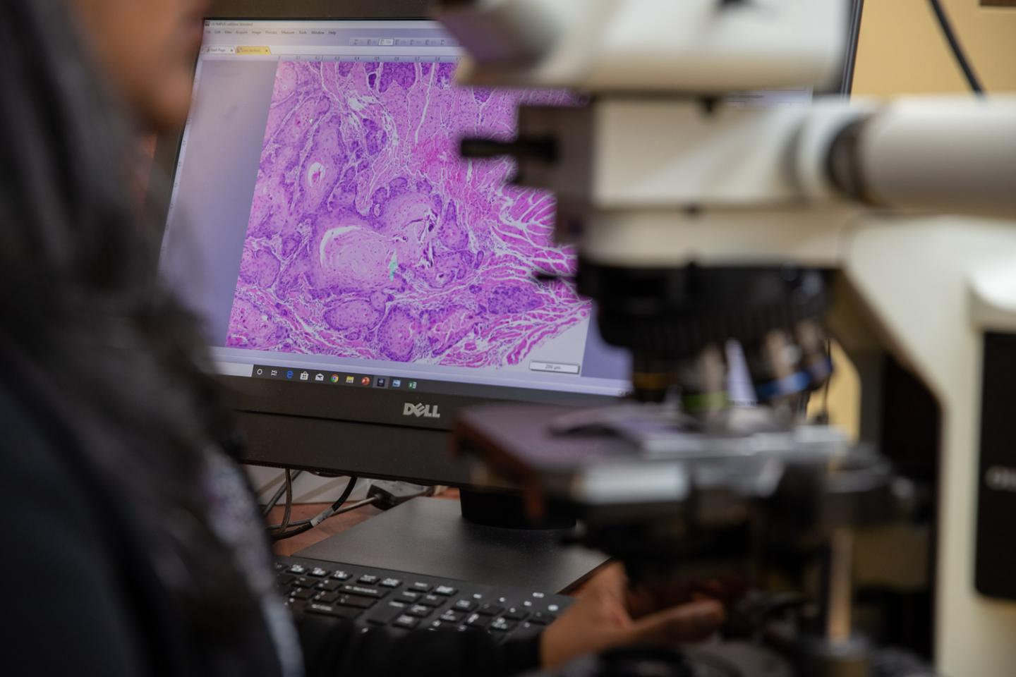 Oral cancer under the microscope