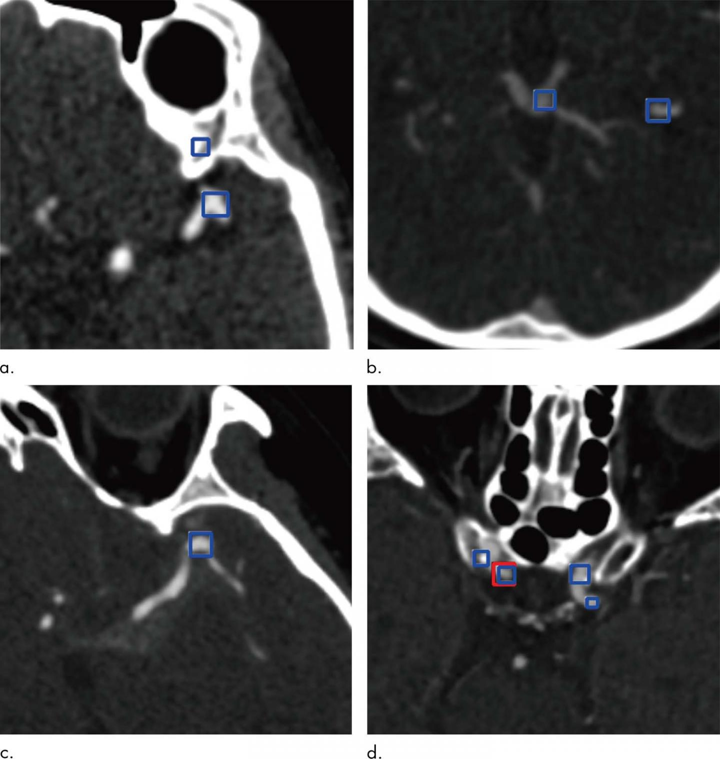 AI Helps Detect Brain Aneurysms on CT Angiography