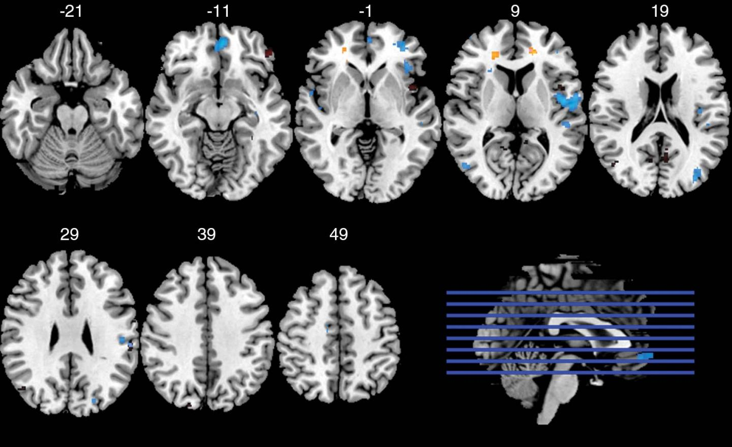 Image 2 Axial functional MRIs