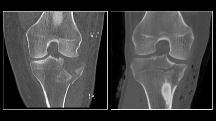 Ultra Low-Dose Radiation CT Scan Compared to Conventional CT Scan