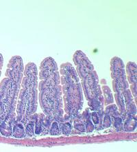 Villi from a Younger Gut