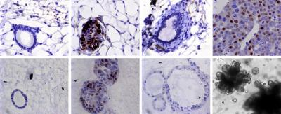 Cell Changes Drive Breast Cancer Relapse