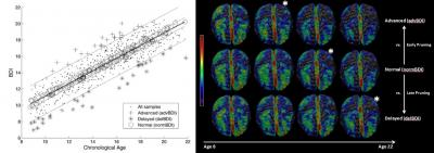 New Penn Index Detects Early Signs of Deviation from Normal Brain Development