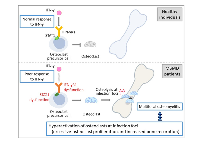 The suggested disease model of multifocal osteomyelitis in MSMD patients