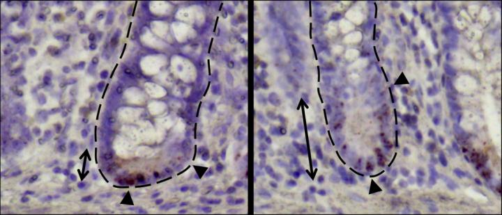 Small intestinal crypts of Crohn´s disease patients.