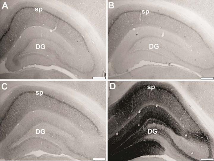 Hippocampal FKBP1b