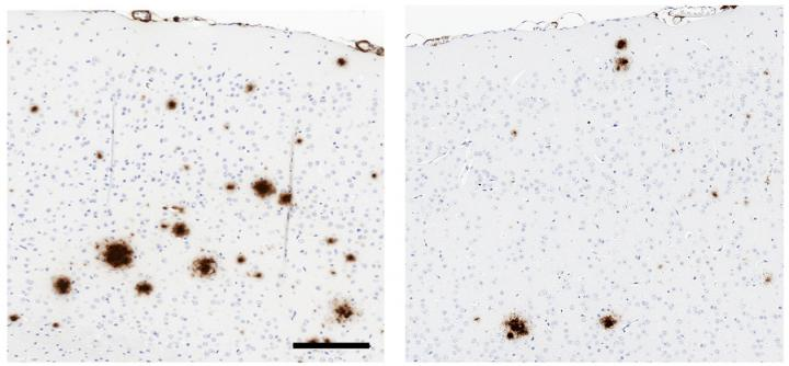 Soluble TLR5 Reduces Amyloid Plaque Formation