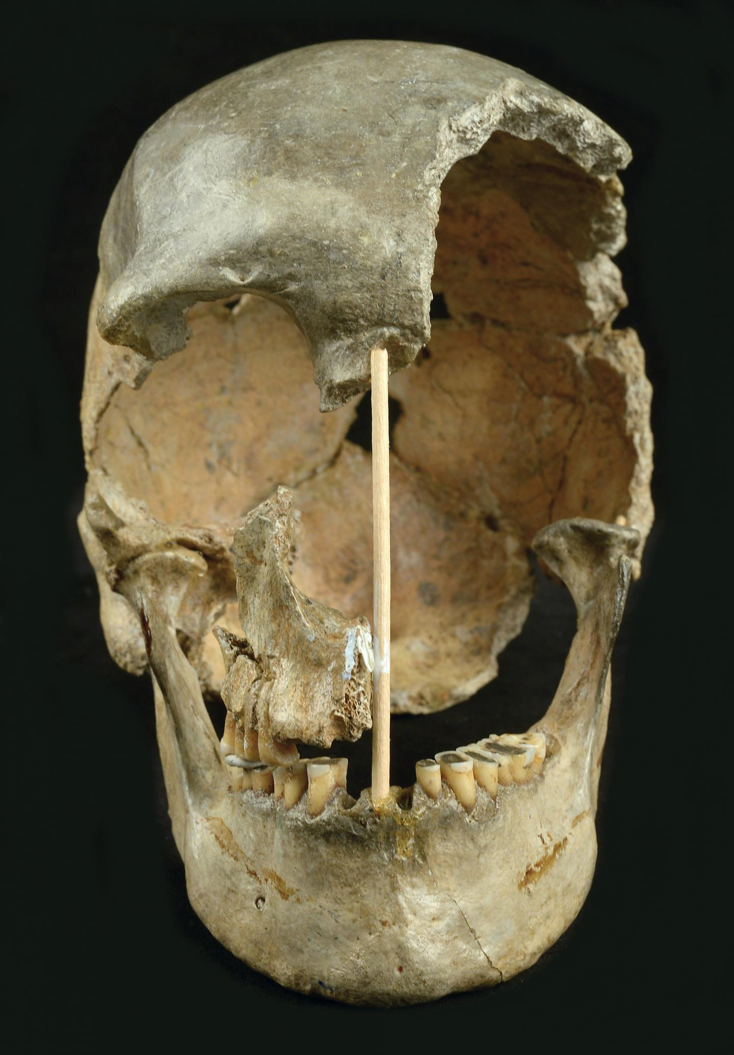 Skull frontal view