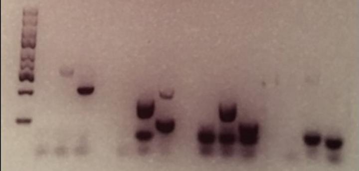 Gel Electro Fingerprints