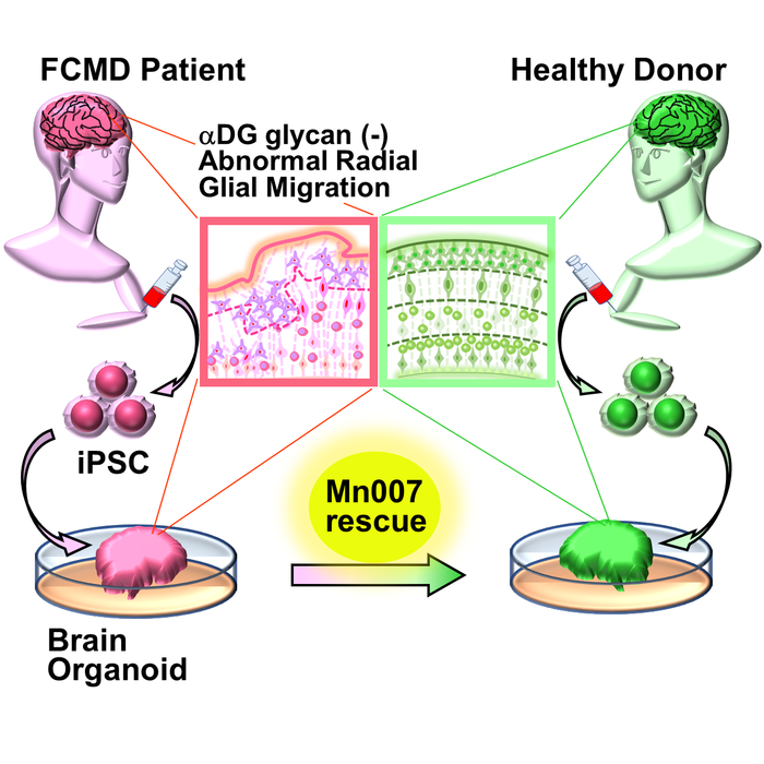 Rescue of FCMD-like defects in a brain organoid model developed using stem cells from patients with FCMD