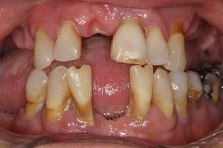 Severe Gum Disease