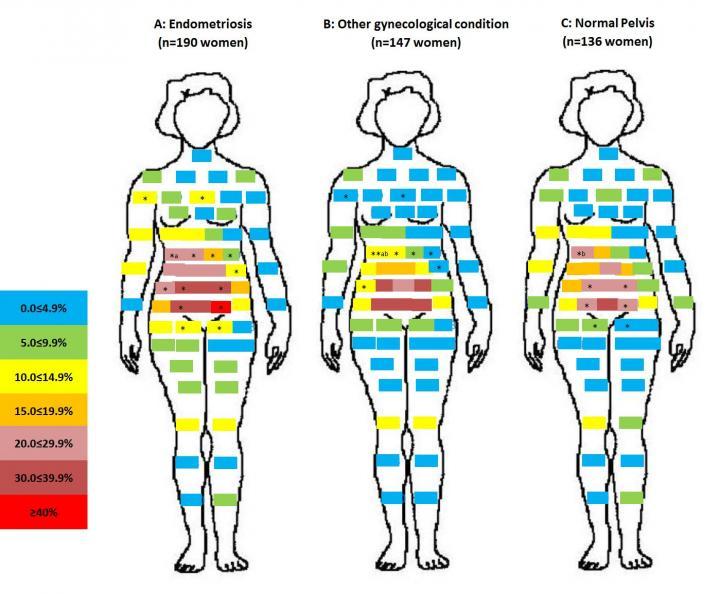 Pelvic Pain Map