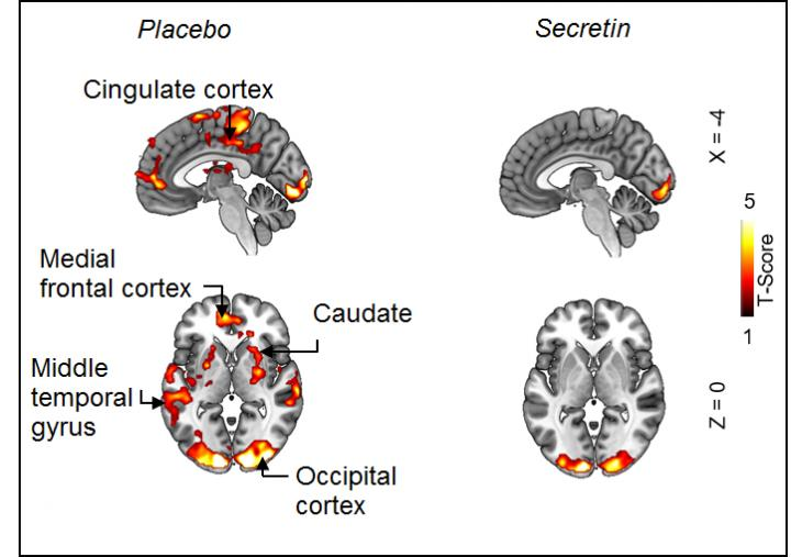 fMRI images showing diminished activity of reward circuits