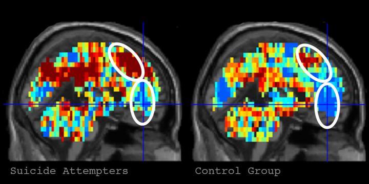 Carnegie Mellon, Pitt Receive $3.8M NIMH Grant To Diagnose Suicidal Thinking Using Brain Imaging