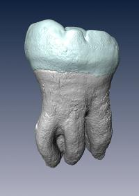 Three-Rooted Lower Second Molar