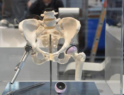 Hip Implant for Long-Term Use