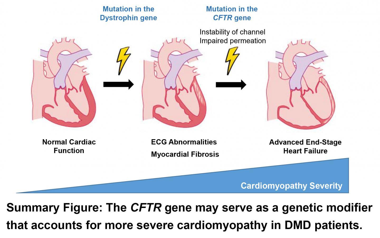 Cardiomyopathy Severity