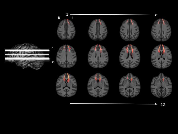 Serial Views of Chimpanzee Brain