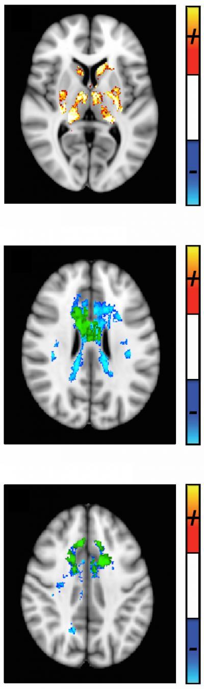 Quantitative Susceptibility MRI Developed to Track MS