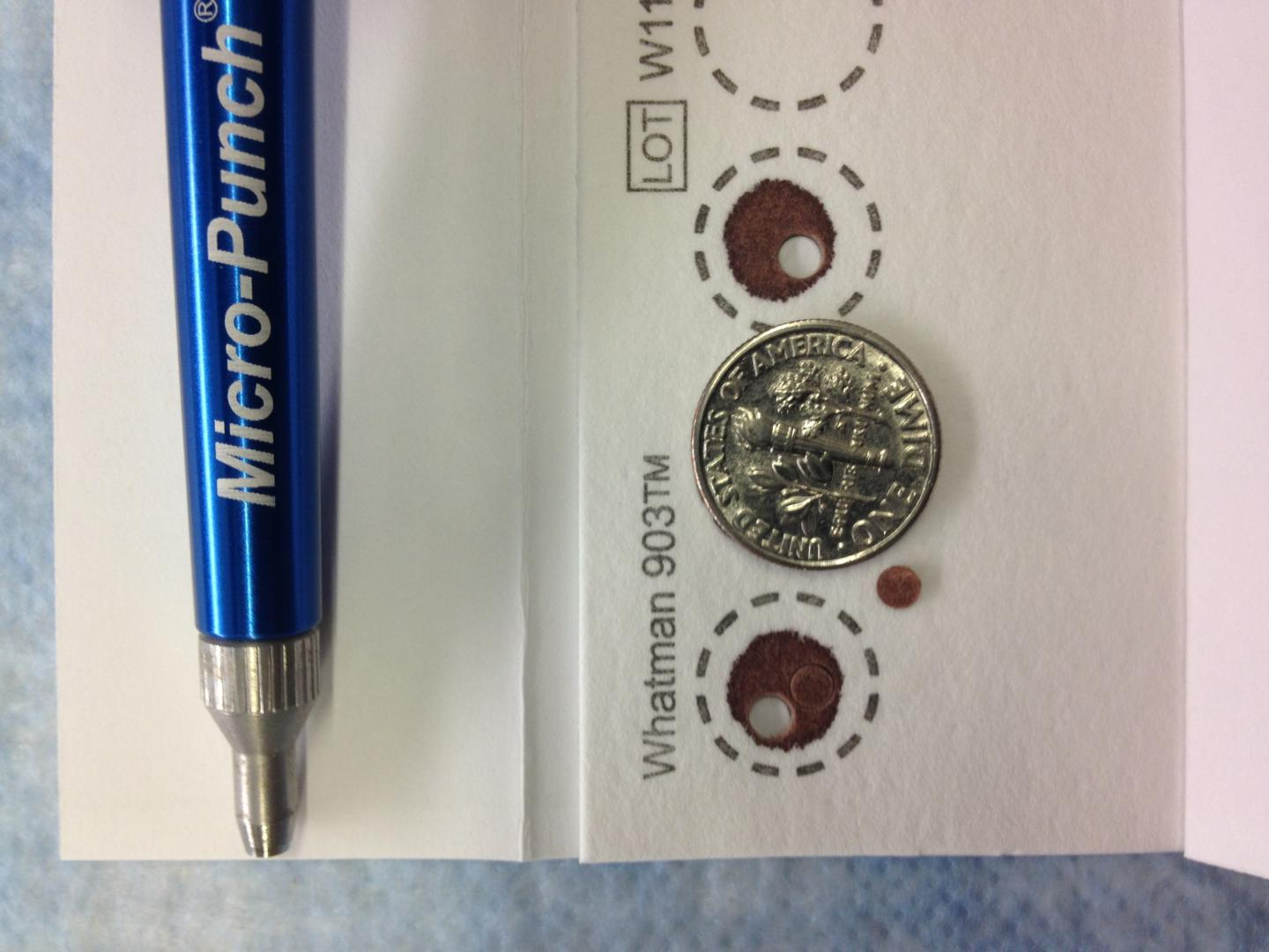 A 3mm Punch is Taken from a Dried Blood Spot and Sent to the Lab to Assess PrEP Drug Levels