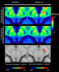 Iron Measurements with MRI Reveal Stroke's Impact on Brain (2 of 3)