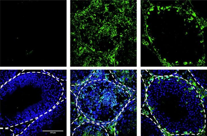 Antioxidant Treatment Prevents Sexual Transmission of Zika in Mice