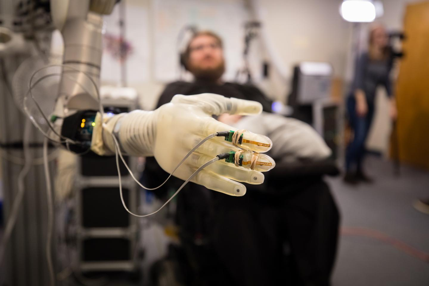 Patient with Prosthetic Hand