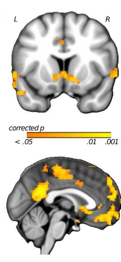 Neural Regions Modulated by Setback Controllability