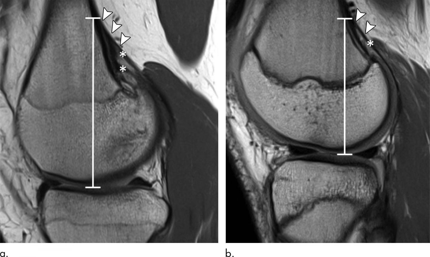 Irregular Findings Common in Knees of Young Competitive Alpine Skiers