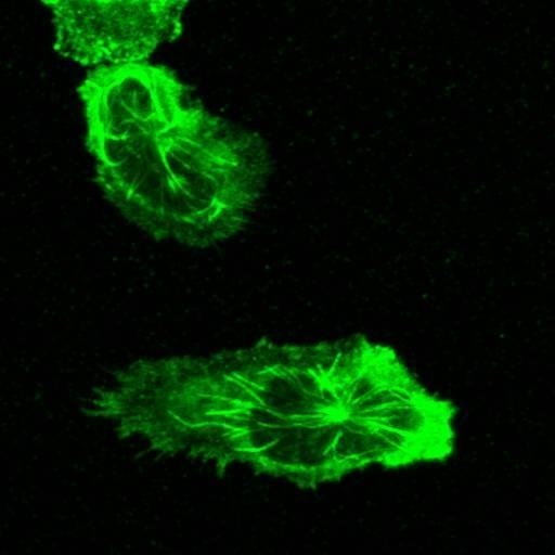 A crawling neutrophil, tubulin labeled green.