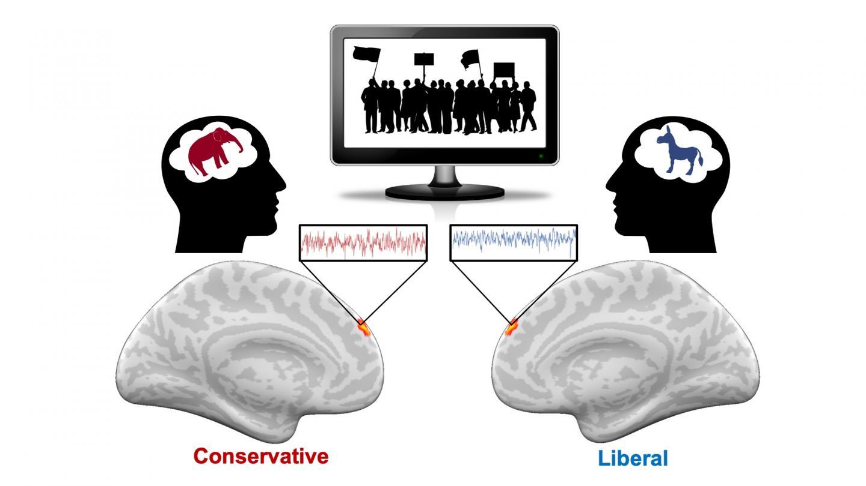 Partisan brain differences