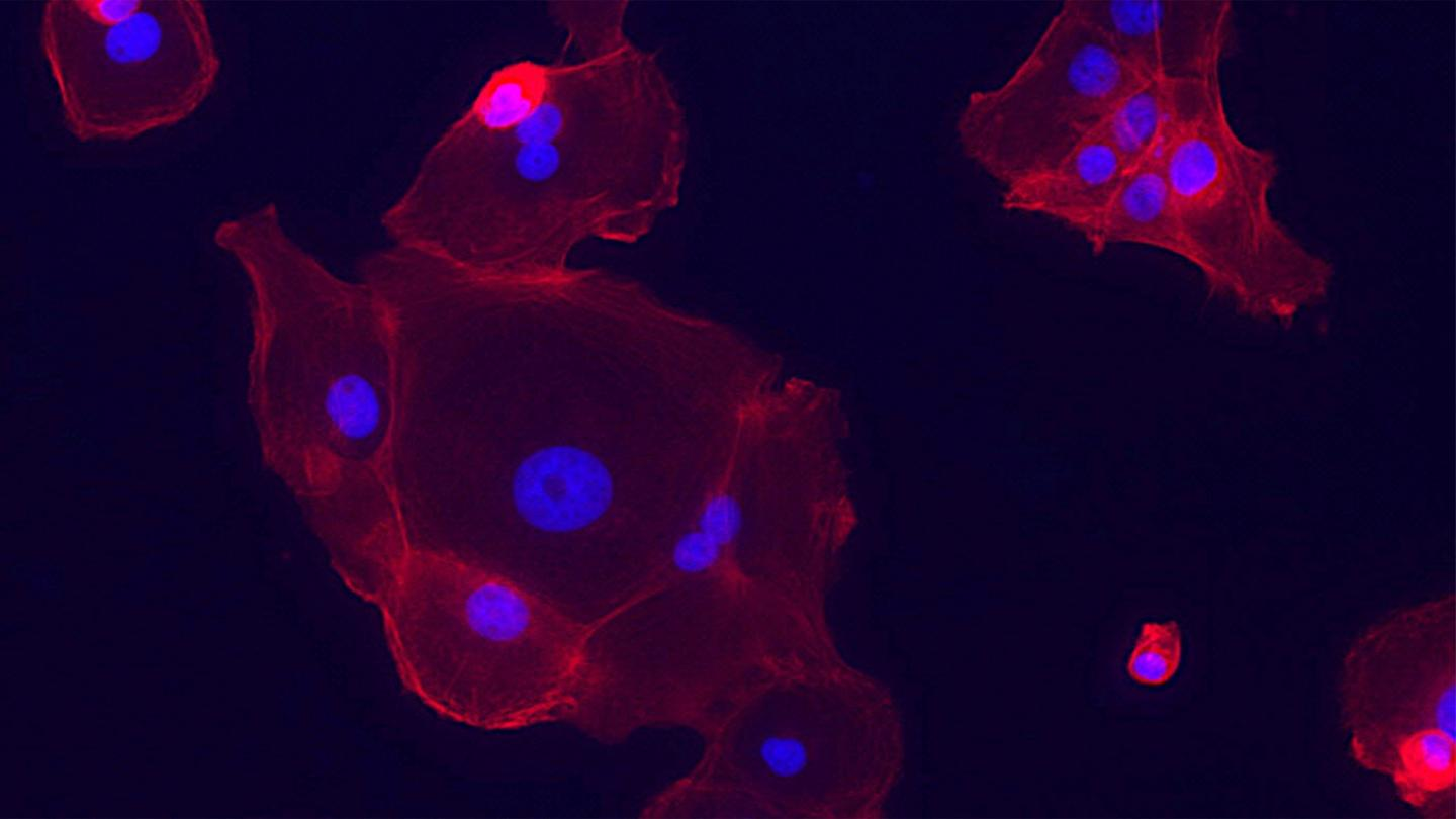 Epithelial Cell Lung Tumors