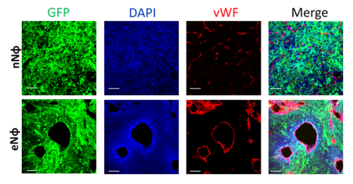 Bone marrow pro-tumorigenic neutrophils (lower panel) promote the formation of new blood vessels (angiogenesis) in the tumor. GFP (green) = tumor, vWF (marker for blood vessels).