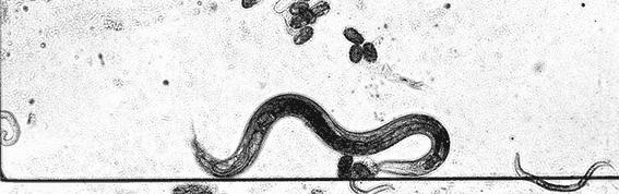 Nematode Worm Gets Caught in a Gel