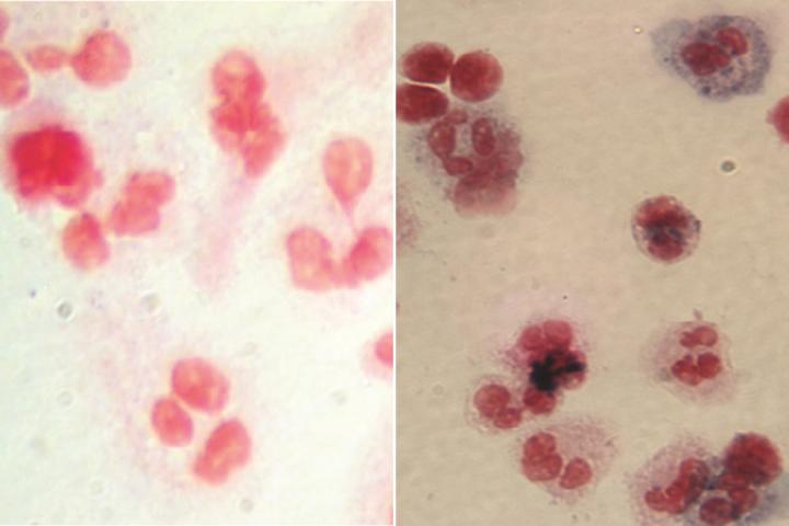 Patient Cells Before and After Gene Therapy