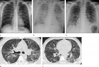 Lung Injuries from Vaping Have Characteristic Patterns on CT