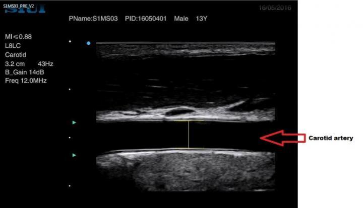 Ultrasound Image of the Carotid Artery