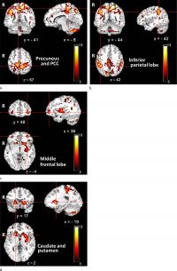 Images Show Overlapped Clusters in the Brains of Pediatric Patients with Chronic Kidney Disease