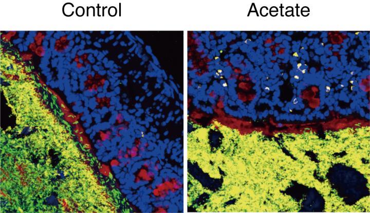 Acetate-triggered immune response