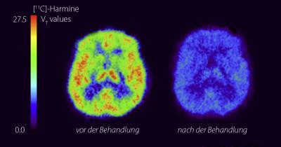 Depression from Monoamine-Oxidase A