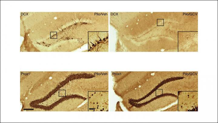 Reducing Seizures by Removing Newborn Neurons