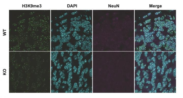 Suv39h2 deficiency in the mouse brain